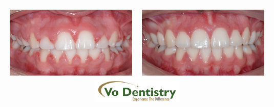 Gingivectomy, gum surgery, Gum laser, Georgia Orthodontic Care, Dr Nguyen, Orthodontic treatments, Orthodontists, Orthodontics, Cosmetic, 